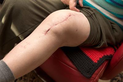 引起牛皮癣关节炎的因素 怎样治疗牛皮癣关节炎